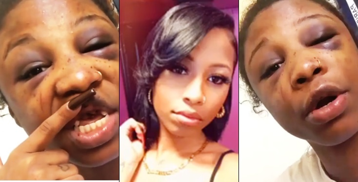 Lady battered and damaged at 19 by her boyfriend, shares her pathetic story (Video)