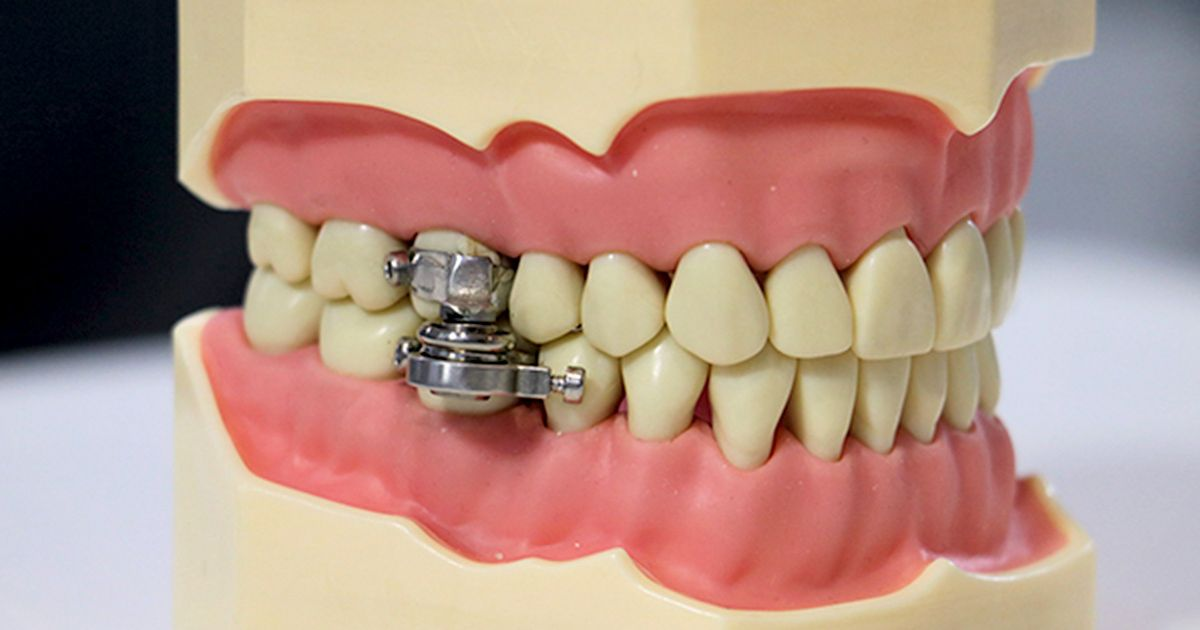 'World-first' weight loss device that just clamps teeth together mocked on social media