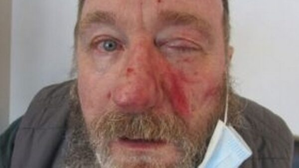 Covidiot jailed for 10 years after spitting in man's face during fight over masks