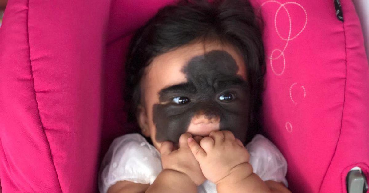 Adorable 'batgirl's' final surgery to remove birthmark halted as visa runs out