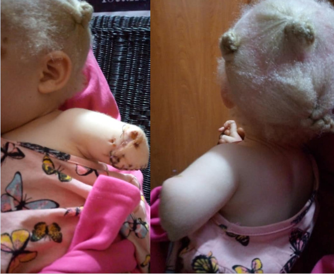 Toddler's hand, chopped off ,albino hunters, pretending,police officers