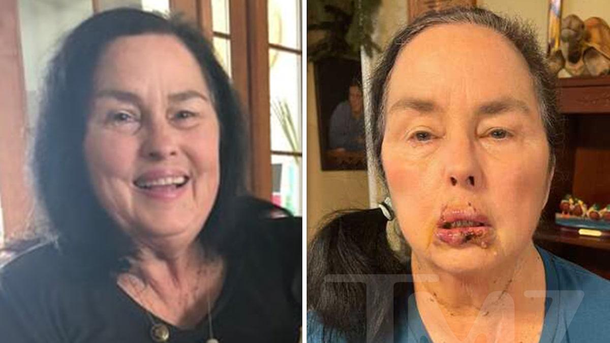 'Duck Dynasty' Star Kay Robertson's Brutal Dog Bite Injuries