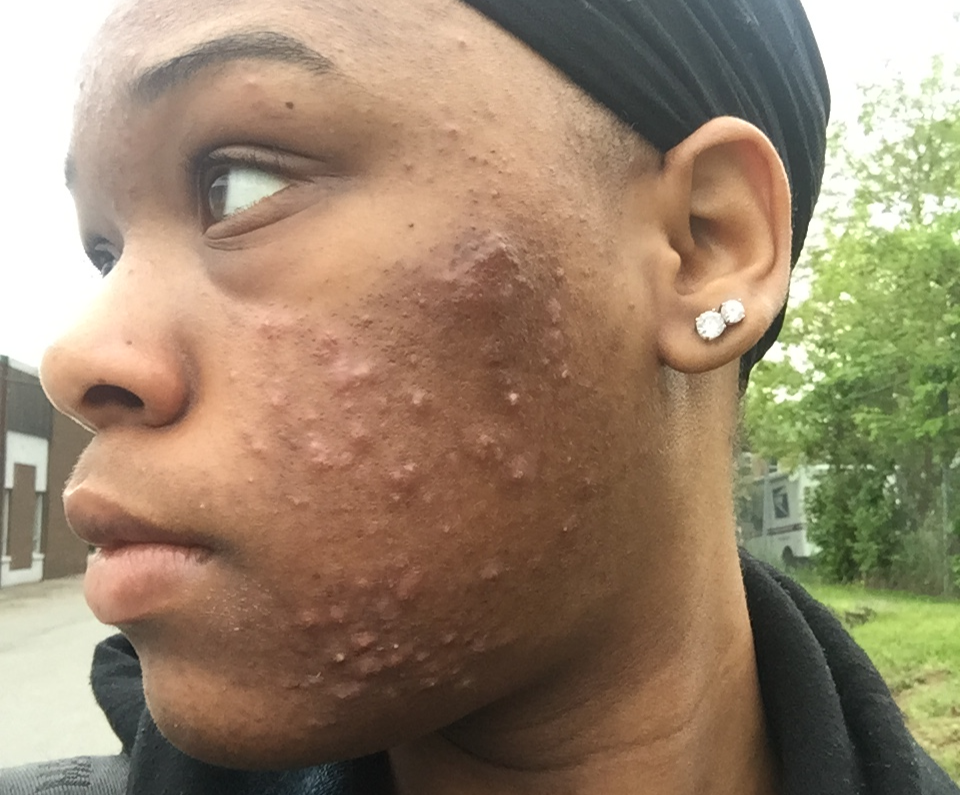 Kiwanga Doctors Rescued me From Acne Which had Destroyed Face