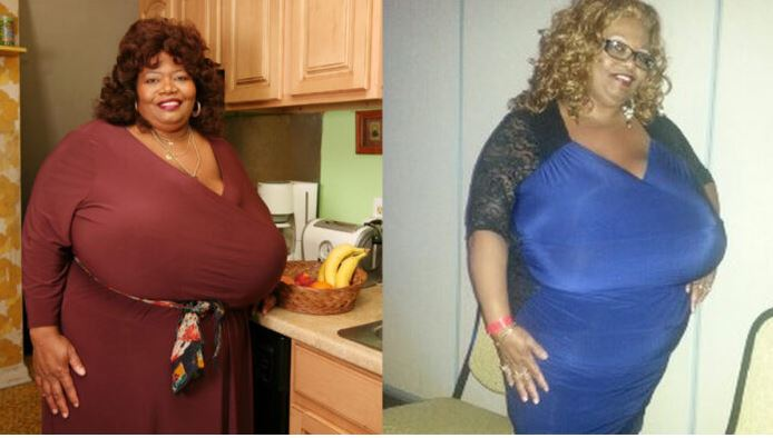 Woman Becomes Millionaire For Having The Largest Natural Breasts In The World (See Pictures)